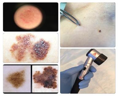 дерматоскопско изследване